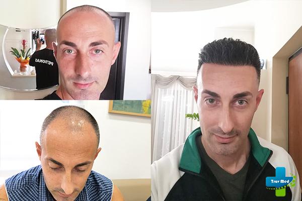 trapianto capelli tirana trav med prima e dopo 2